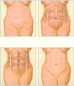 Tummy Tuck Rochester NY   Abdominoplasty Tummy Tuck Surgery