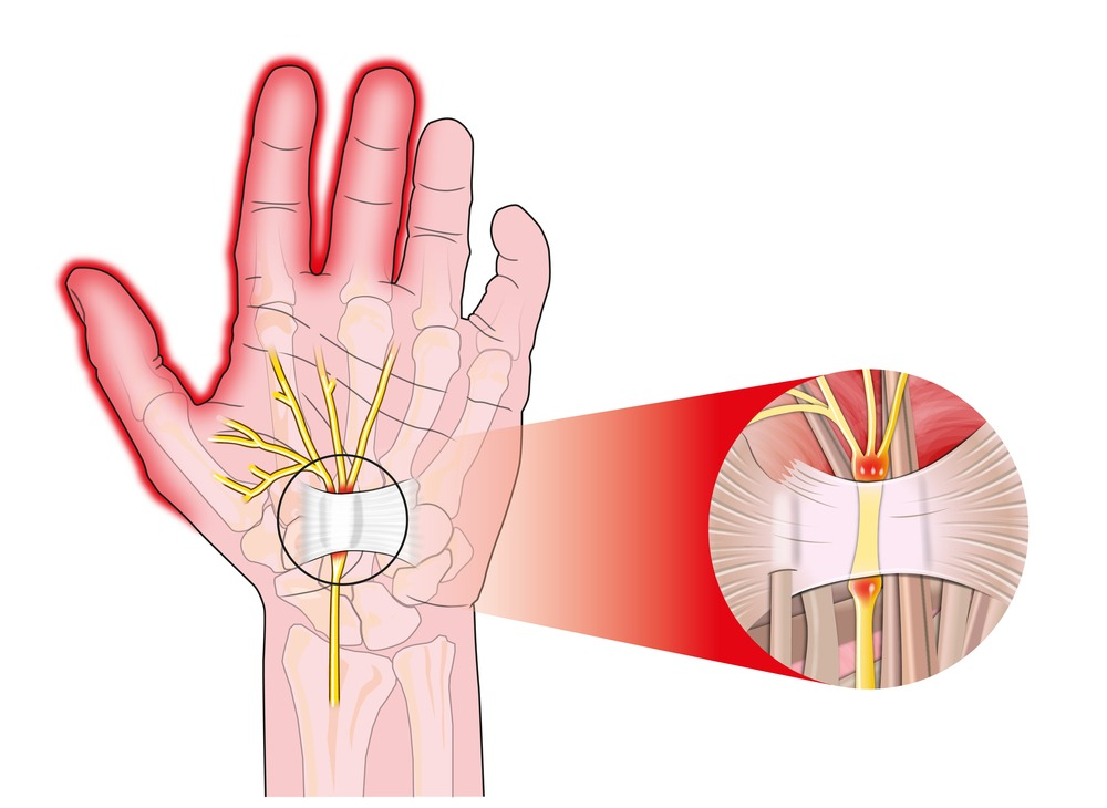 Carpal Tunnel Syndrome Graham Plastic Surgery Rochester Ny