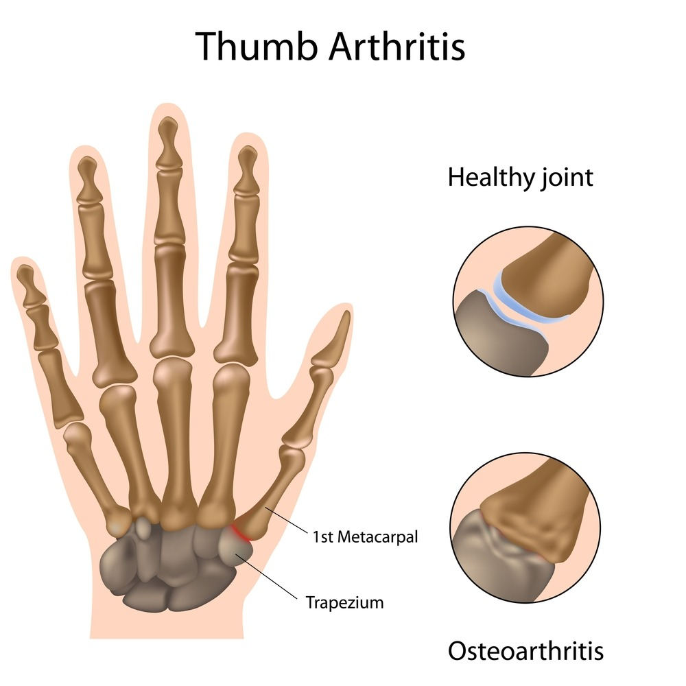 how to tell the difference between tendonitis and arthritis